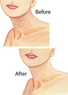 Dermelect Neck Firming Cream Smoothes Sagging Skin