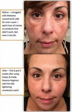 "REVERSE Lightening Regimen  |  ""Before I struggled with Melasma caused by BC pills for over a year. I Spent tons of money on products that didn't work. Not even a tiny bit."" Rodan + Fields Reverse finally did the trick!!  
