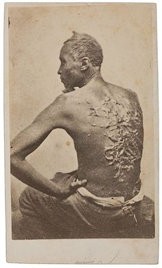 Runaway Slave Gordon  -  The Whipping Scars On The Back of The Fugitive Slave Named Gordon ... From the Smithsonian Photography Initiative, Photography changes the way we record and respond to social issues, by Frank H. Goodyear, III, assistant curator of photographs at the National Portrait Gallery, suggests how mass produced and widely distributed images helped the abolitionist movement.
