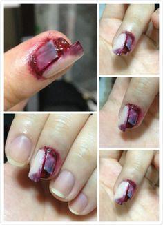Broken bloody nails using fake fingernails.