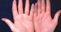 Να γιατί μερικοί άνθρωποι έχουν πάντα κρύα χέρια!: http://biologikaorganikaproionta.com/health/232005/