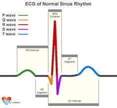 ECG of Normal Sinus Rhythm