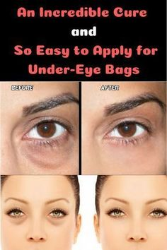 Do you want a new sportive look? 10 Minutes Exercise Daily and You Will be Surprised with the Result Skin Care Regimen, Skin Care Tips, Dark Under Eye, Under Eye Bags, Eyes Problems, Prevent Wrinkles, How To Apply Makeup, Cool Eyes, Good Skin