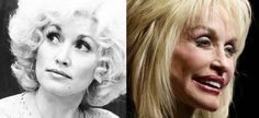 Celebrities – now and then...Dolly Parton 1980; 2007