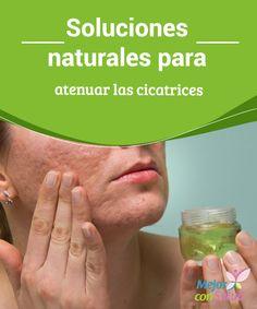 el vinagre y el acido urico acido urico 6.1 alimentos que causan el acido urico alto