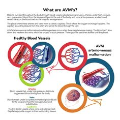 AVM's (Arteriovenous Malformations) a symptom of Osler-Weber-Rendu Syndrome, or HHT (Hereditary Hemorrhagic Telangiectasia). - Public domain, free to use and share.