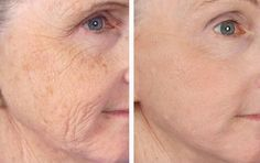 How To Fight Old Age With Simple Tips For Wrinkles Treatment Treatment: As women get older, they understandably become more concerned about how they look. They begin to notice small lines and wrinkles around their eyes, their mouth, and their forehead. Cosmetic Surgery Prices, Les Experts, Neck Wrinkles, Piel Natural, Eye Wrinkle, Wrinkle Creams, Homemade Face Masks, Grow Hair, Tejido