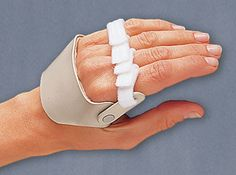 The Radial Hinged Ulnar Deviation Splint for Rheumatoid Arthritis provides adjustable tension and helps realign fingers affected with moderate to severe MP ulnar deviation. Yoga For Arthritis, Juvenile Arthritis, Arthritis Exercises, Arthritis Pain Relief, Rheumatoid Arthritis Symptoms, Arthritis Remedies, Alternative Health, Arthritis, Chronic Pain