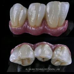Beautifull artistic teeth
