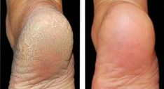 Verschwende nicht dein Geld für Pediküre: Verwende zwei Zutaten aus der Küche und deine Füße werden wieder strahlen