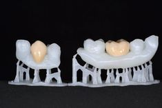 3D Printed teeth with glazed crowns printed on Form 1+