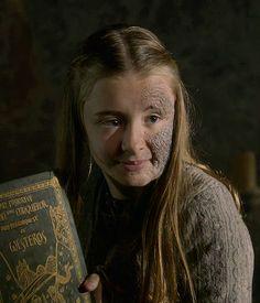 Shireen Baratheon - Game of Thrones--Beautiful character! Beautiful Mind! RIP