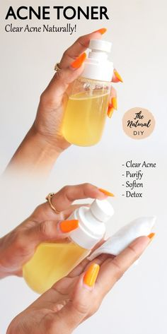 Natural Acne Treatment, Skin Treatments, Natural Acne Remedies, Facial Treatment, Toner For Face, Facial Toner, Best Toner For Acne, Skin Toner, Hair