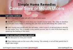 Mix 1-tsp salt to 1-c. water. Rinse several times a day. Add a pinch of salt to that sore. it will sting, but it will help dry it out. Natural Cancer Cures, Natural Health Remedies, Natural Cures, Home Remedies, Ulcer Remedies Mouth, Healing Cold Sore, Mouth Sores, Smart Snacks, Cancer Treatment