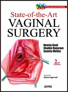 Jual beli State-of-the-Art Vaginal Surgery 2nd edition di Lapak WIDYA ANANDA - adhimasbhre. Menjual Import - State-of-the-Art Vaginal Surgery 2nd edition   By (author)  Neerja Goel , By (author)  Shalini Rajaram , By (author)  Sumita Mehta  Product details Format Mixed media product | 536 pages  Dimensions 170 x 238 x 20mm | 821g  Publication date 01 Feb 2013  Publisher Jaypee Brothers Medical Publishers  Publication City/Country New Delhi, India  Language English  Edition Revise...