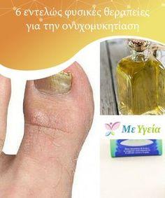 Natural Health Remedies, Natural Cures, Herbal Remedies, Influenza B, Beauty Secrets, Beauty Hacks, Asthma, Garlic Health Benefits, Health And Wellness