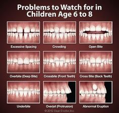 Problems to watch for in children age 6 to 8. Children should have their first orthodontic visit by age 7. #Orthodontist #Orthodontics #Orthotown