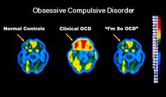 """Before you say, """"I'm so OCD..."""" Brain scan of someone with clinical ocd"""