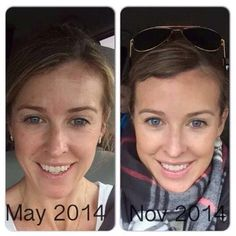 """This is Kristen ...6 months on REDEFINE Power Pack + Redefine Lip Serum...Amazing results!! Here's what she had to say, """"What might be most awkward is that I thought I had good skin 6 months ago! Umm, clearly I did not!  My skin tone was red and uneven and let's not even talk about the situation going on with my forehead... It is so much BETTER! Brighter, clearer, less wrinkles and smoother. Even my lips look better (thank you lip serum).""""   Give yourself the gift of great skin! The…"""