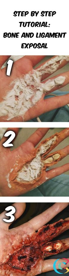 A messy step by step tutorial of a bone and ligament exposal, just in time for Halloween! Makeup Fx, Zombie Makeup, Scary Makeup, Makeup Stuff, Special Makeup, Special Effects Makeup, Looks Halloween, Halloween Costumes, Horror Makeup