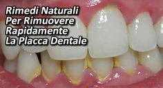 La placca dentale è composta dai residui degli alimenti e dai batteri che restano nella [Leggi Tutto...]