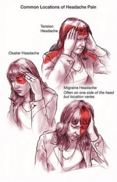 Thirty million people in the US suffer from migraine headaches due diet, body or environment. Find out why you have a migraine headache by checking for food allergies. Prevent the migraine headache from escalating by Pressure Point Therapy, Massage Pressure Points, Tension Headache, Severe Headache, Headache Cure, Chronic Migraines, Chronic Pain, Chronic Illness, Migraine Relief