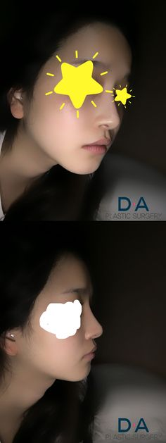 DA Rhinoplasty 2 year after surgery!  For more info: en.daprs.com Make a reseration/Enquiries: info-en@daprs.com  #PlasticSurgery #DAPRS #DAPlasticSurgery #Rhinoplasty #NoseSurgery #NoseJob #Korea #PlasticSurgeryInKorea #KoreanBeauty #KoreanPlasticSurgery #GangnamPlasticSurgery #Pretty #CosmeticSurgery #Beauty