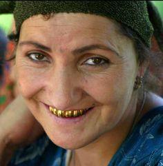 Tajikistan gold teeth - Prótesis dental - Wikipedia, la enciclopedia libre