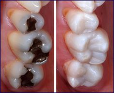 """Here are several reasons why you might consider getting your metal fillings replaced with tooth-coloured fillings: * Tooth-coloured fillings look nicer :D * When x-rayed, metal fillings are not see-through, so it's difficult to detect if there is new decay in those areas * Potential mercury leaching from the material (We say """"potential"""" because according to the CDA, very little mercury is leached from silver fillings and no research has shown people to become ill from them) * Metal may be…"""