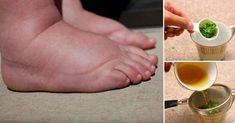 Deze krachtige thee is de beste remedie tegen gezwollen enkels, benen en voeten!