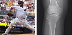 Baseball Injuries, Ml B, Knee Injury, Stem Cells, Sport Casual, New York Yankees, Change