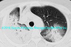 11. その他の肺疾患 症例102:特発性器質化肺炎 約2週間後のCT,『コンパクトX線アトラスBasic 胸部単純X線写真アトラス vol.1 肺』 Radiology