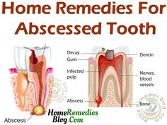 gum removal considered best way to get rid of pain and abscess tooth. Oil pulling removes bacterial colonies from between your teeth and gums. It prevent you from Infected Tooth Remedies, Remedies For Tooth Ache, Severe Tooth Pain, Tooth Pain Relief, Tooth Abcess Remedy, Tooth Infection, Gum Disease Treatment, Home Remedies, Massage Tips