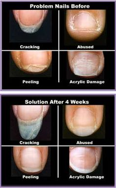 Prostrong - Advanced Nail Care Products - nail problems - BioFusion