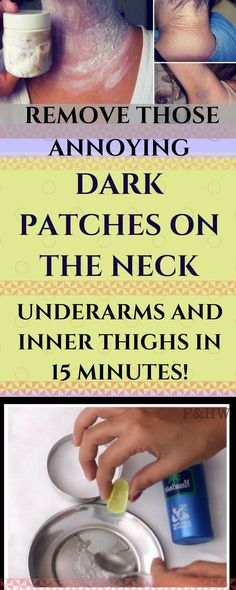Remove Those Annoying Dark Patches On The Neck Underarms And Inner Thighs In 15 Minutes - Vooz Style Hair Removal, Home Remedies, Natural Remedies, Health Remedies, Flu Remedies, Sleep Remedies, Homeopathic Remedies, Dark Spots On Legs, Skin Tag