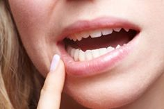 gingivitis can be resolved. And there are numerous ways by which you can treat gingivitis even at home. Check out these home remedies for gingivitis. Gum Health, Oral Health, Dental Health, Canker Sores, Virus Del Herpes Simple, Rubbing Alcohol Uses, Healing Cold Sore, Receding Gums, Crunches