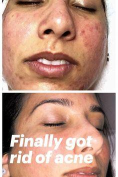 Finally got rid of acne #acneproduct #skincare #beauty #HowDoMolesDevelopOnTheSkin #FaceFlatBrownSpots #BrownSpots Black Spots On Face, Brown Spots On Hands, Skin Moles, Face Moles, Dark Under Eye, Acne Scar Removal, Skin Spots, Chemical Peel, Best Moisturizer