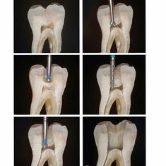 Peroxide teeth whitening where to get your teeth bleached,dentist that does root canals healthy mouth,dental extraction gum care tips. Dental Hygiene Student, Medical Dental, Dental Assistant, Logo Dental, Dental Art, Dental World, Dental Life, Dental Pictures, Dental Extraction