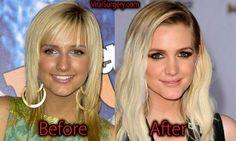Ashlee Simpson Plastic Surgery. #ashleesimpson #botox #nosejob #actress #beauty #plasticsugery #beforeafter