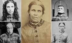 These images were taken in 1869 at West Riding Pauper Lunatic Asylum, near Wakefield, Yorkshire, by chief neurologist Sir James Crichton-Browne, known as a pioneer in the field.