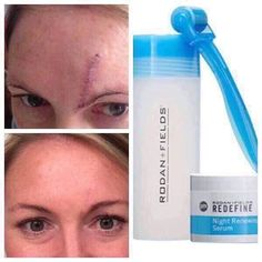 """Ashley's story...""""in February 2014 I found out I had basal cell skin cancer on my forehead and the MOHS surgery left a huge scar. I had tried numerous products to conceal and heal my scar but nothing worked. I reached out to a friend that had been selling Rodan + Fields and decided to try the Reverse regimen and AMP roller. I began to see results quickly and actually took my regimen and AMP roller to my MOHS surgeon to get his professional opinion. After hearing his feedback, that the…"""