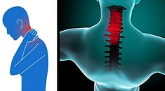 """Neck pain may feel like a """"kink,"""" stiffness, or severe pain. Pain may spread to the shoulders, upper..."""