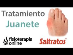Hallux valgus o juanete - Consejos y ejercicios para su tratamiento - YouTube Fitness Workout For Women, Zumba, Stay Fit, Aloe Vera, Fit Women, Dental, Health Fitness, Youtube, Blog