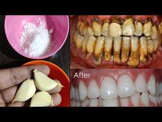 Ingrown Hair Remedies, Teeth Whitening Remedies, Natural Teeth Whitening, Garlic Benefits, Homemade Liquor, Teeth Health, Healing Herbs, White Teeth, Natural Medicine