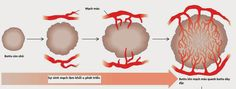 CHỐNG SINH MẠCH ĐỂ ĐIỀU TRỊ UNG THƯ http://akchongungthu.com/chong-sinh-mach-de-dieu-tri-ung-thu/ qua @AK Corner Cafe #chongsinhmach #dieutriungthu #akchongungthu #akcornercafe sinh mạch, tế bào nội mạc mạch máu, thuốc chống sinh mạch, thuốc ức chế VEGFR, điều trị ung thư, thuốc điều trị ung thư, chống ung thư, akchongungthu.com, ak corner cafe