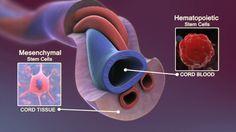 Umbilical Cord Blood Stem Cells