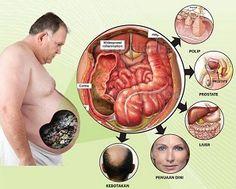 add pinBB 25EE460B Menurunkan berat badan - Mengecilkan perut buncit: Mengecilkan perut buncit dengan cara aman Social Stories, Naan, Surabaya, Cleanser, Healthy Life, Anatomy, Diet, Gardening, Youtube