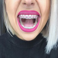 Had an adjustment yesterday, went with pink, not really a fan but it's only for 2 weeks until my next appointment. My ortho has kinked my lower wire to move my incisors abit, he also buffed Pink Braces, Gold Braces, Braces Smile, Teeth Braces, Braces Tips, Braces Bands, Braces Rubber Bands, Braces Transformation, Cute Braces Colors