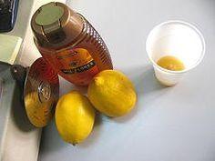 Limón y miel para manchas n la piel