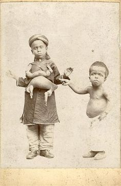 A very young Perumal and parasitic twin with Soopromanien Munsamy, an achondroplastic dwarf. It would appear that Munsamy was also a hydrocephalic.